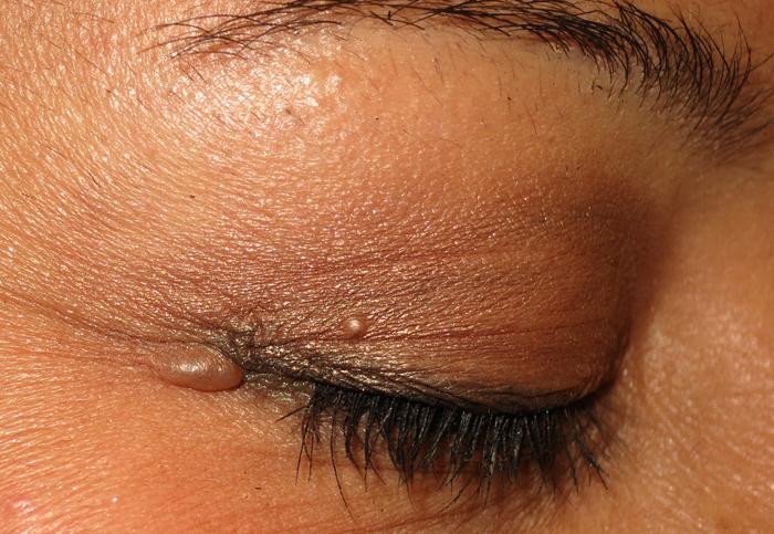Benign Eyelid Lesions Peter Ad Rubin Md